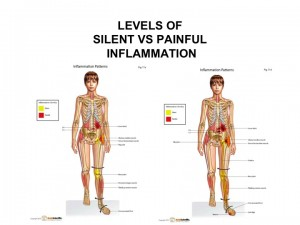 Levels of Silent vs. Painful Inflammation