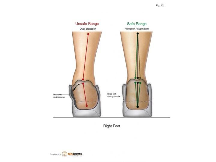 Inserts or Othotics weaken the suspension system